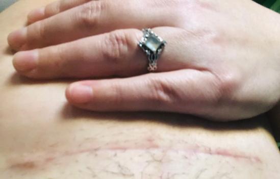 cesarean scar